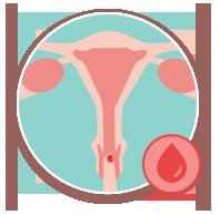 col utérus règles
