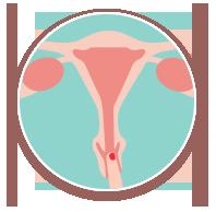col utérus bas